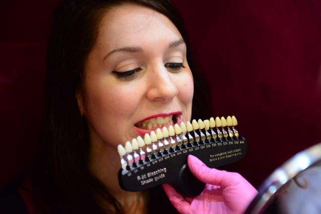 Blanchiment dentaire Light Sheer Belgique 6